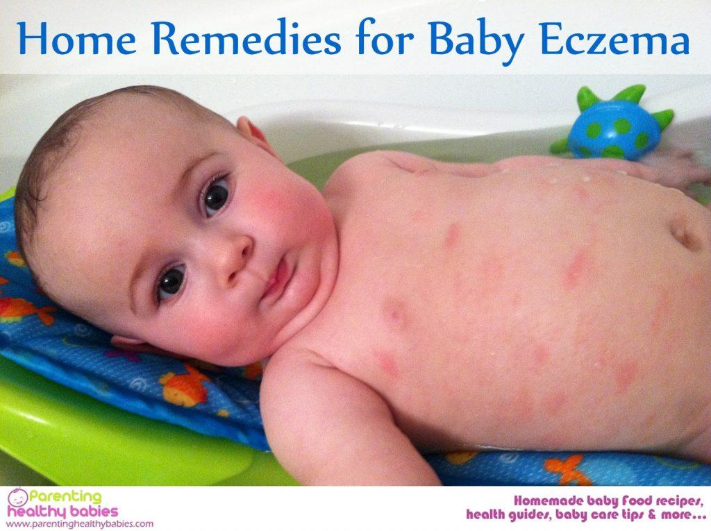 Baby Eczema Home Remedies