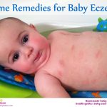 Baby Eczema Home Remedies