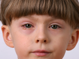 remedies for conjunctivitis