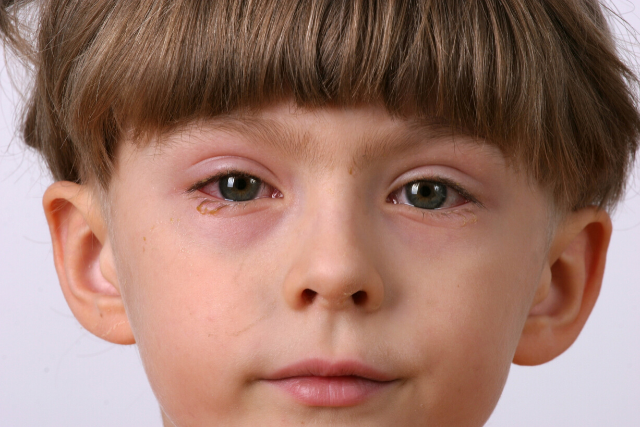home remedy for pink eye in children
