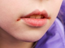 mouth ulcers in children
