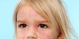 papular rash child