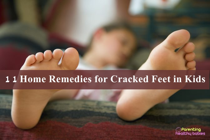 cracked feet in kids