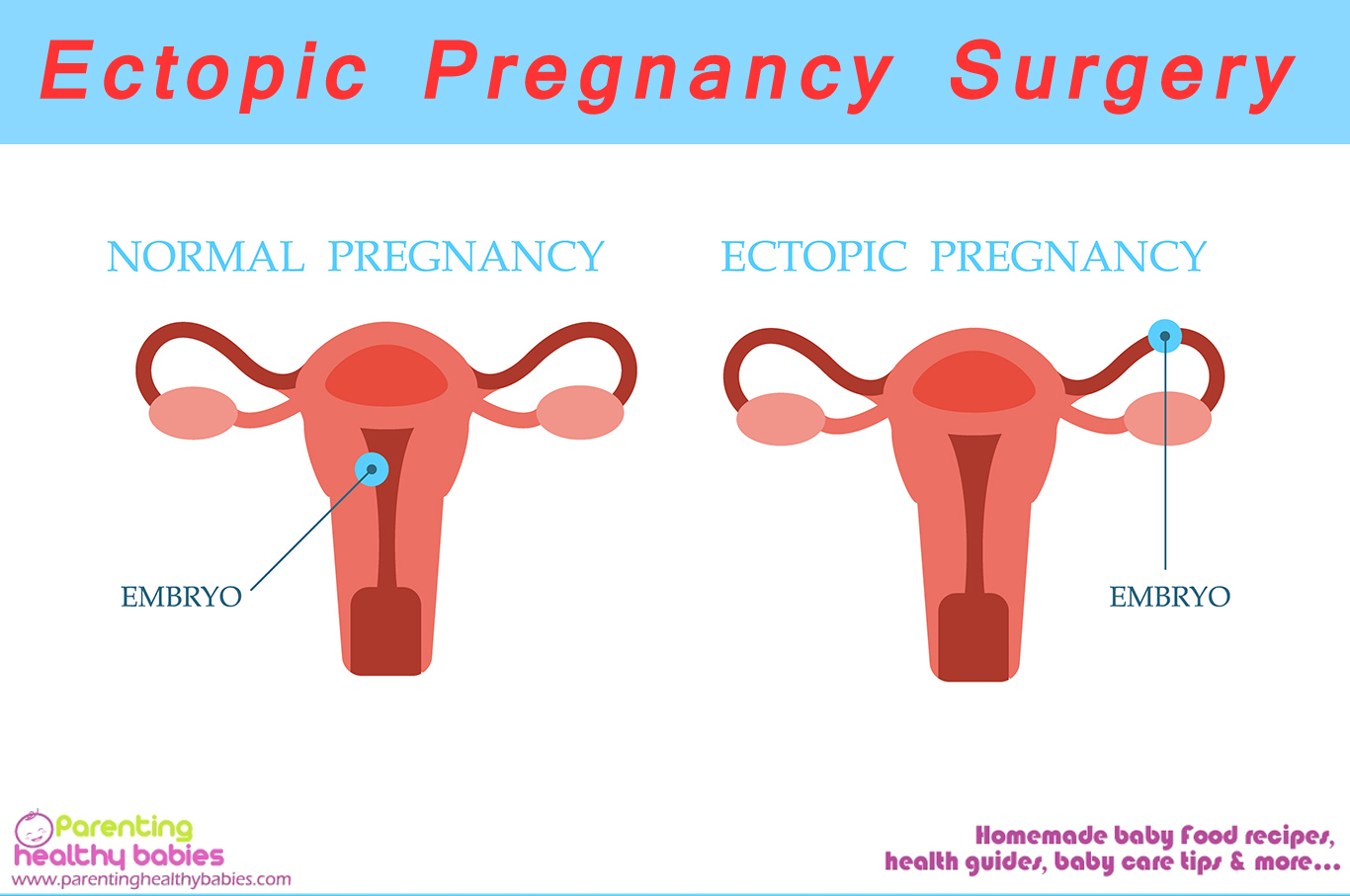 Ectopic Surgery and Recovery