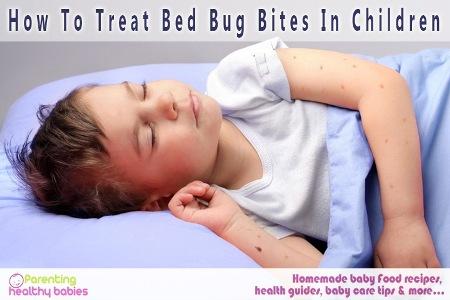 Treat Bed Bug Bites
