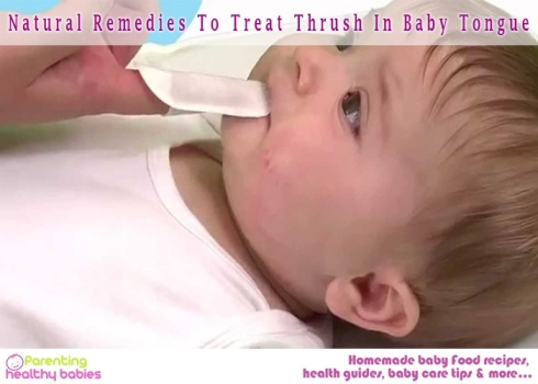 Treat Thrush In Baby Tongue