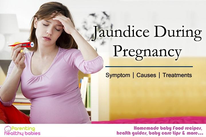 pregnancy induced jaundice, jaundice in pregnancy management, Jaundice During Pregnancy, jaundice in pregnancy