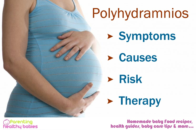 Polyhydramnios, symptoms of Polyhydramnios, causes of Polyhydramnios, Polyhydramnios risks