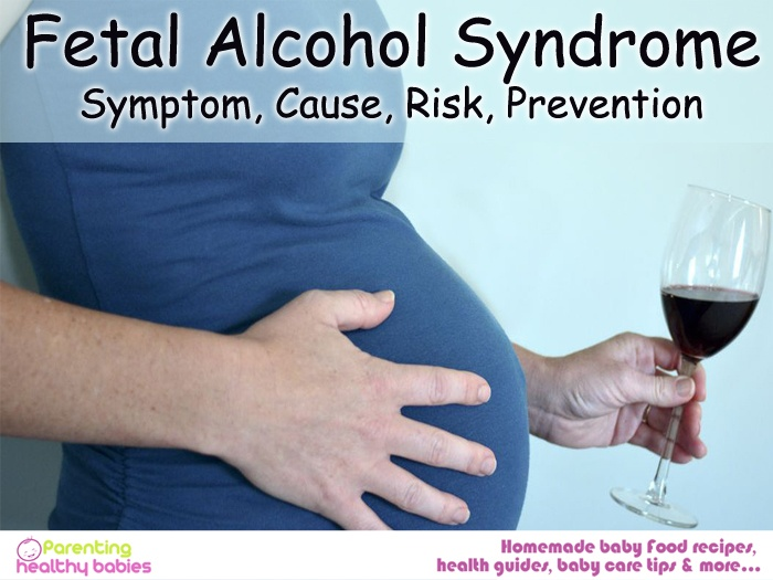 fetal alcohol syndrome, causes of fetal alcohol syndrome, symptoms of fetal alcohol syndrome