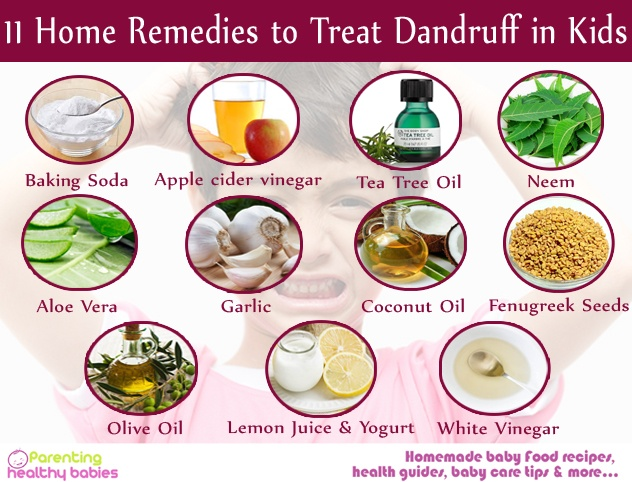 Treat Dandruff in Kids