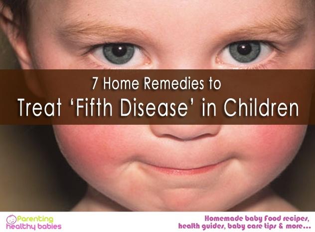 Fifth Disease