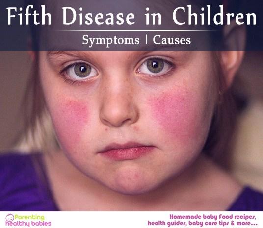 fifth disease in children