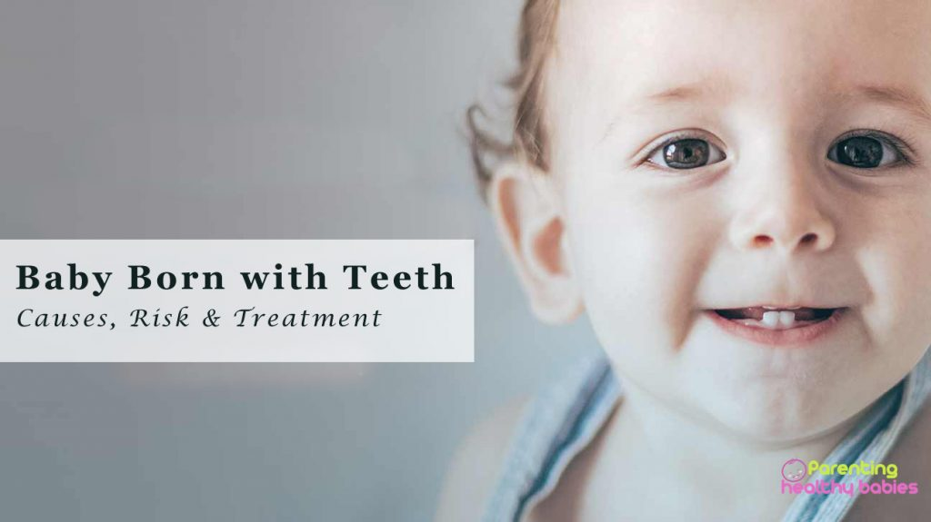 baby born with teeth