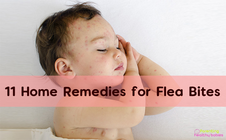 home remedies for flea bites