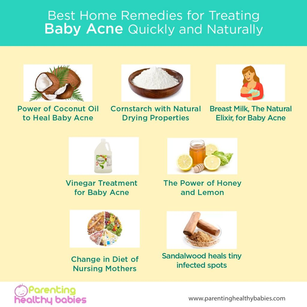baby acne remedies