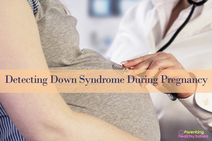 down sydrome during pregnancy