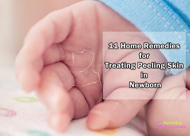baby peeling skin remedies