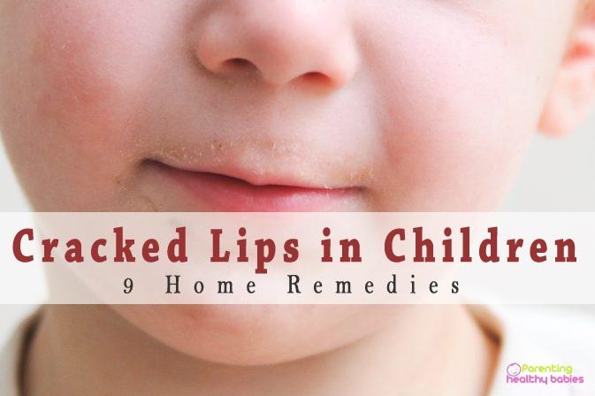 cracked lips in children