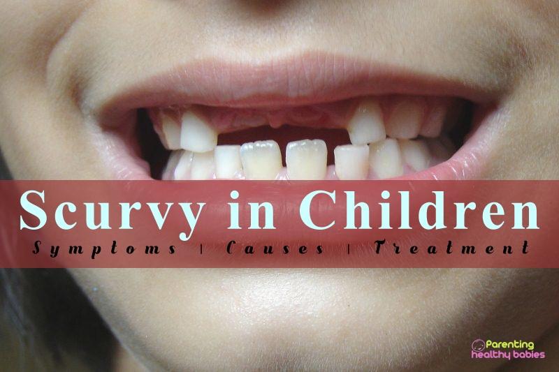 scurvy in children