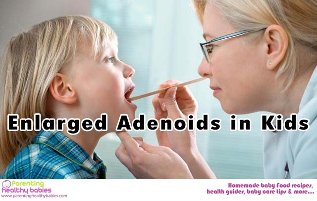enlarged adenoids in kids