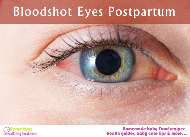 _ Bloodshot_ Eyes Postpartum