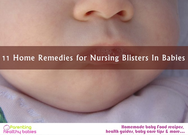 Nursing Blisters In Babies