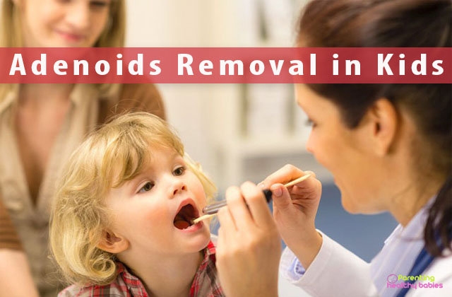 adenoids removal in kids