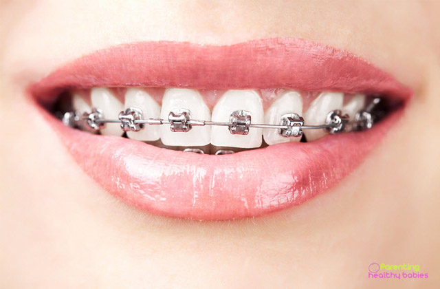 braces during pregnancy