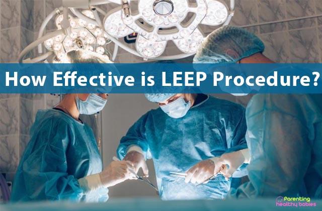 leep procedure