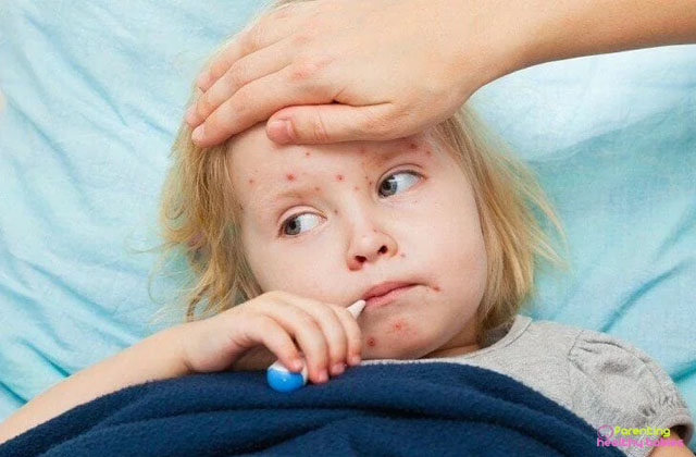 measles in children