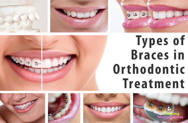 types of braces in orthodontic treatment