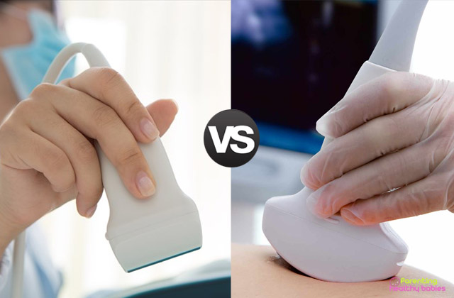 ultrasound versus sonogram