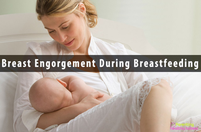 Breast Engorgement During Breastfeeding