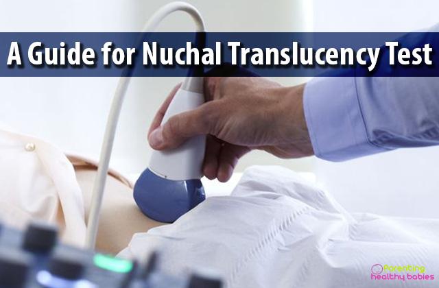 nuchal translucency test