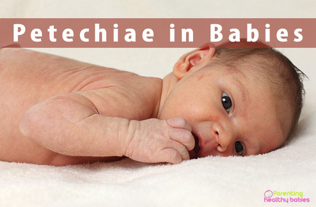 petechiae in babies