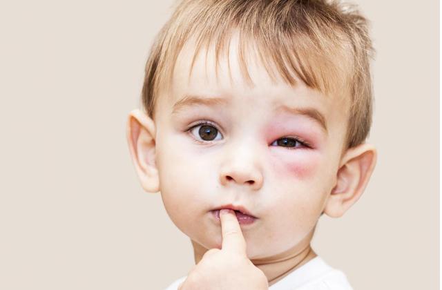 swollen eyelids