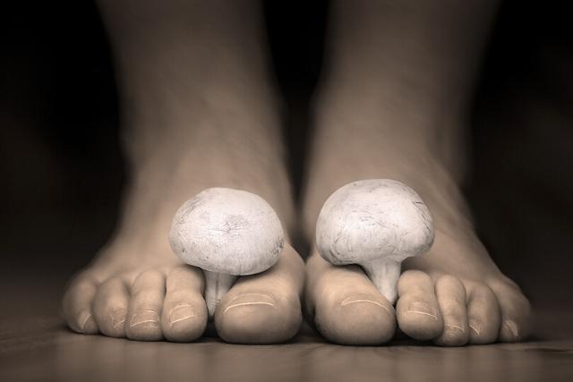 toenail fungus while pregnant