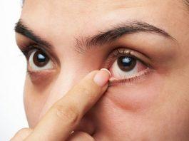 eye twitch pregnancy
