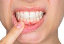 pregnancy gingivitis treatment