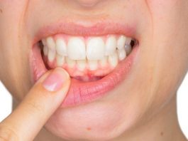 pregnancy gingivitis treatment