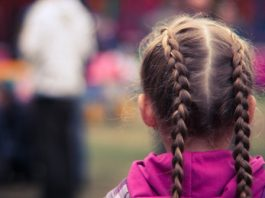 what causes hair loss in child