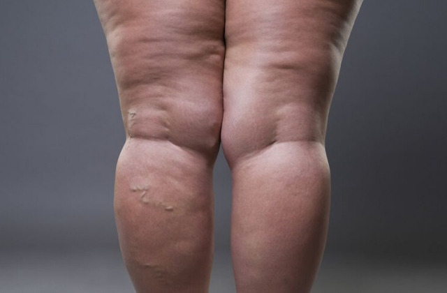 cellulitis in women