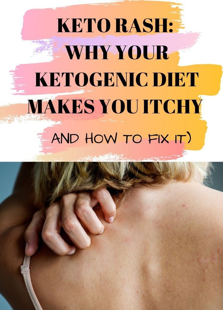 all-you-need-to-know-about-the-keto-rash