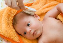 Hair Fall in Babies