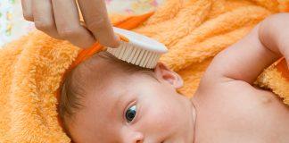 Hair Fall in Babies