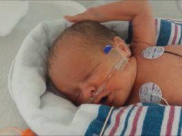 Baby Born At 32 Weeks