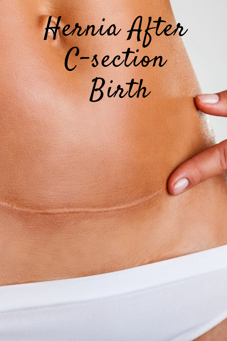 Hernia after C-Section