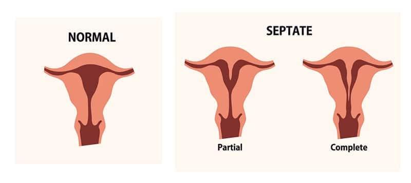 Septate Uterus