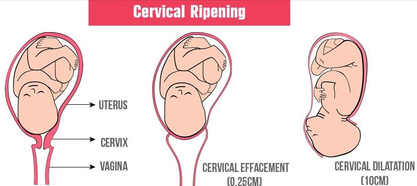 cervical ripening
